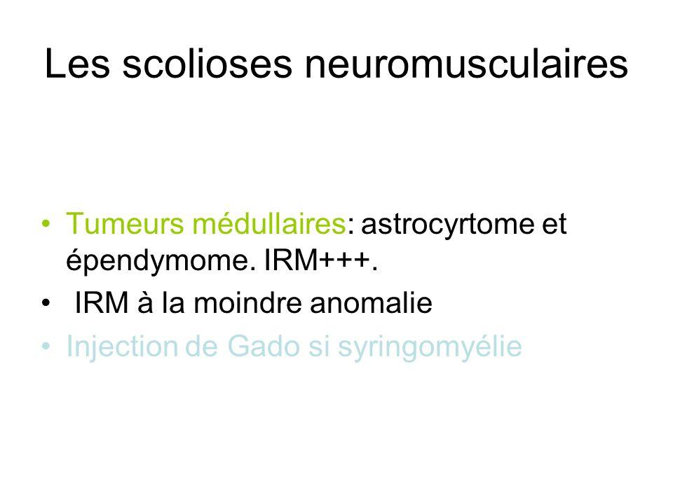 Les scolioses neuromusculaires Tumeurs médullaires: astrocyrtome et épendymome. IRM+++. IRM à la moindre anomalie Injection de Gado si syringomyélie