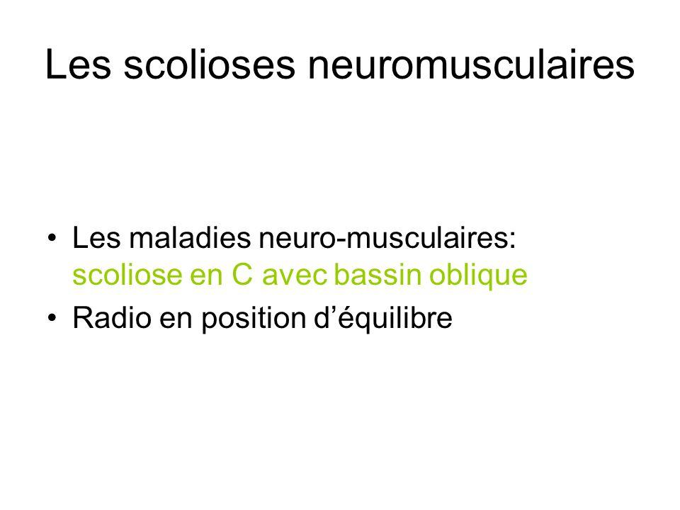 Les scolioses neuromusculaires Les maladies neuro-musculaires: scoliose en C avec bassin oblique Radio en position déquilibre