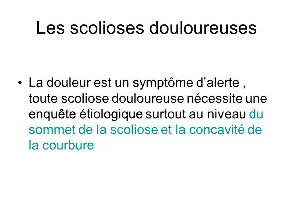 Les scolioses douloureuses La douleur est un symptôme dalerte, toute scoliose douloureuse nécessite une enquête étiologique surtout au niveau du somme