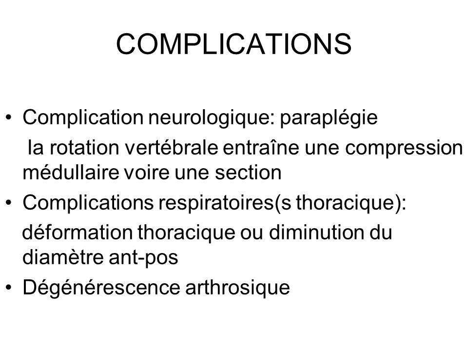 COMPLICATIONS Complication neurologique: paraplégie la rotation vertébrale entraîne une compression médullaire voire une section Complications respira