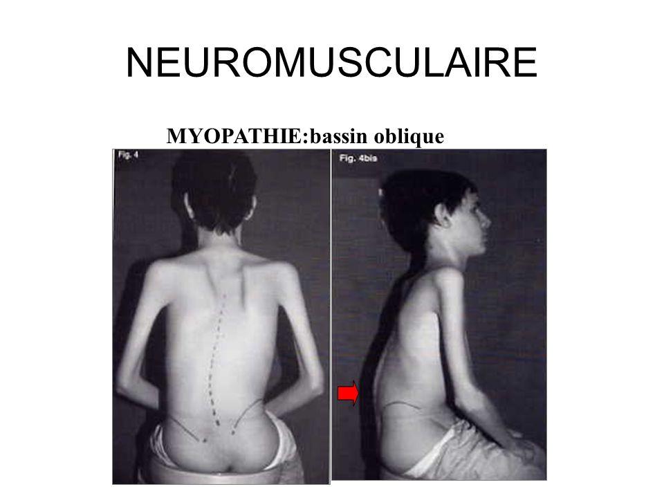 NEUROMUSCULAIRE MYOPATHIE:bassin oblique