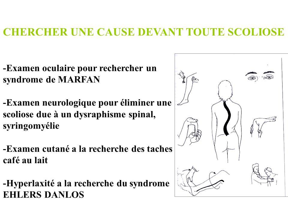 -Examen oculaire pour rechercher un syndrome de MARFAN -Examen neurologique pour éliminer une scoliose due à un dysraphisme spinal, syringomyélie -Exa