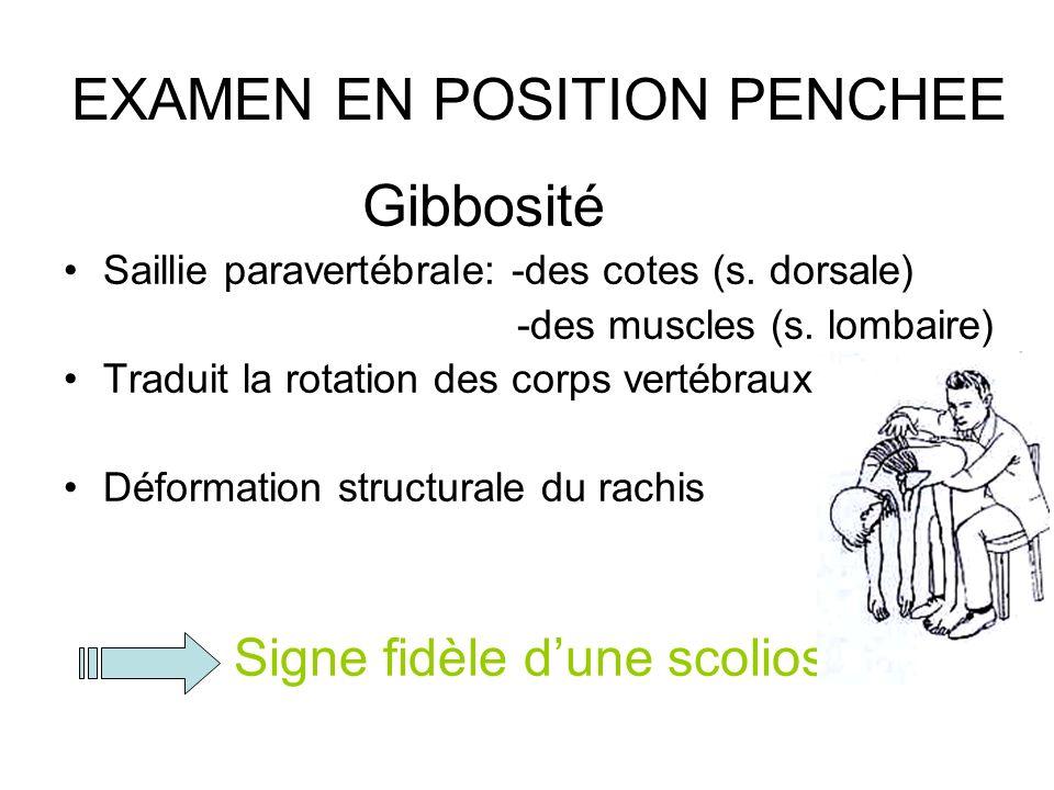 EXAMEN EN POSITION PENCHEE Gibbosité Saillie paravertébrale: -des cotes (s. dorsale) -des muscles (s. lombaire) Traduit la rotation des corps vertébra
