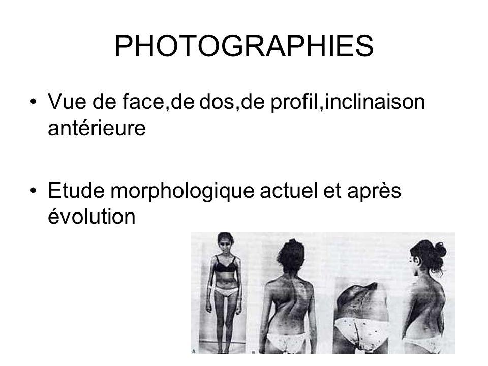 PHOTOGRAPHIES Vue de face,de dos,de profil,inclinaison antérieure Etude morphologique actuel et après évolution
