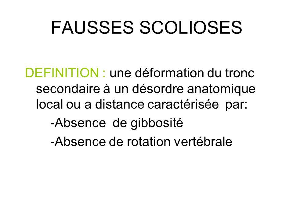 FAUSSES SCOLIOSES DEFINITION : une déformation du tronc secondaire à un désordre anatomique local ou a distance caractérisée par: -Absence de gibbosit