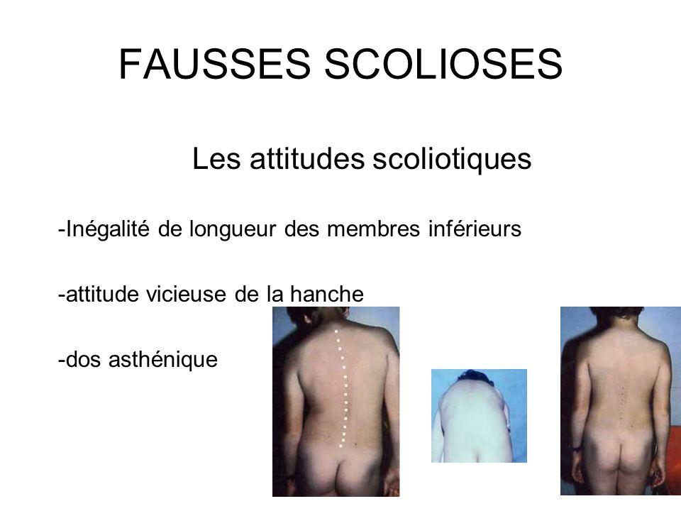 FAUSSES SCOLIOSES Les attitudes scoliotiques -Inégalité de longueur des membres inférieurs -attitude vicieuse de la hanche -dos asthénique