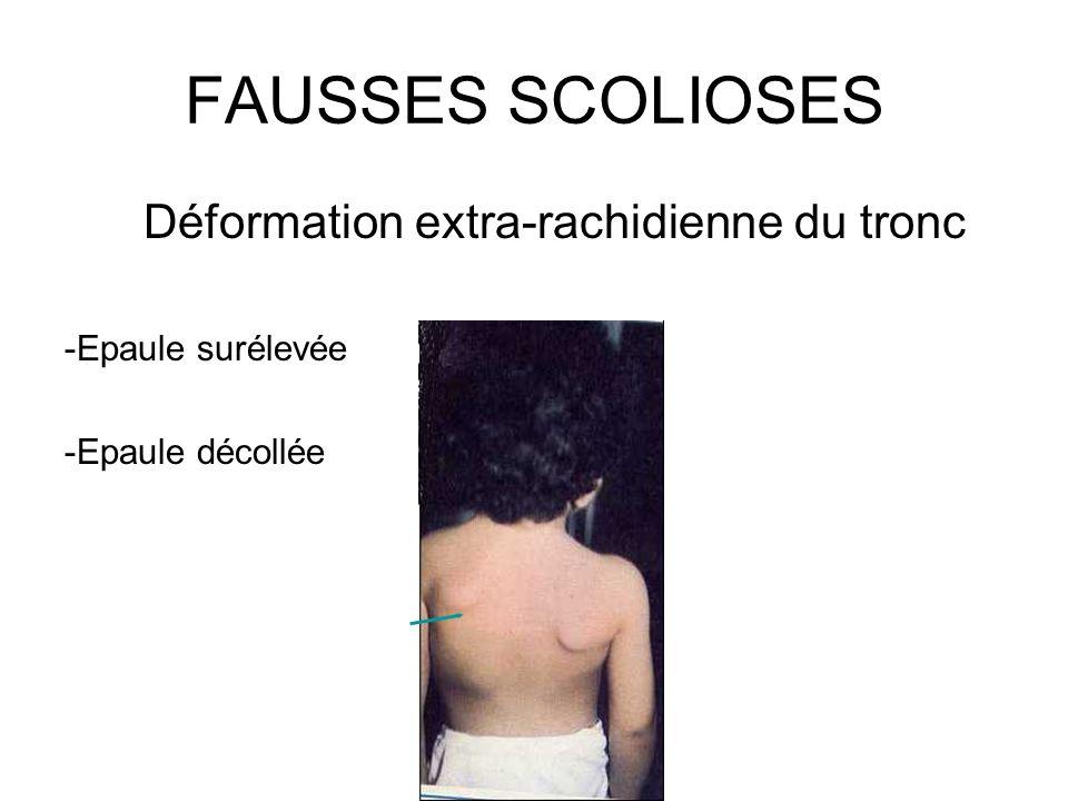 FAUSSES SCOLIOSES Déformation extra-rachidienne du tronc -Epaule surélevée -Epaule décollée