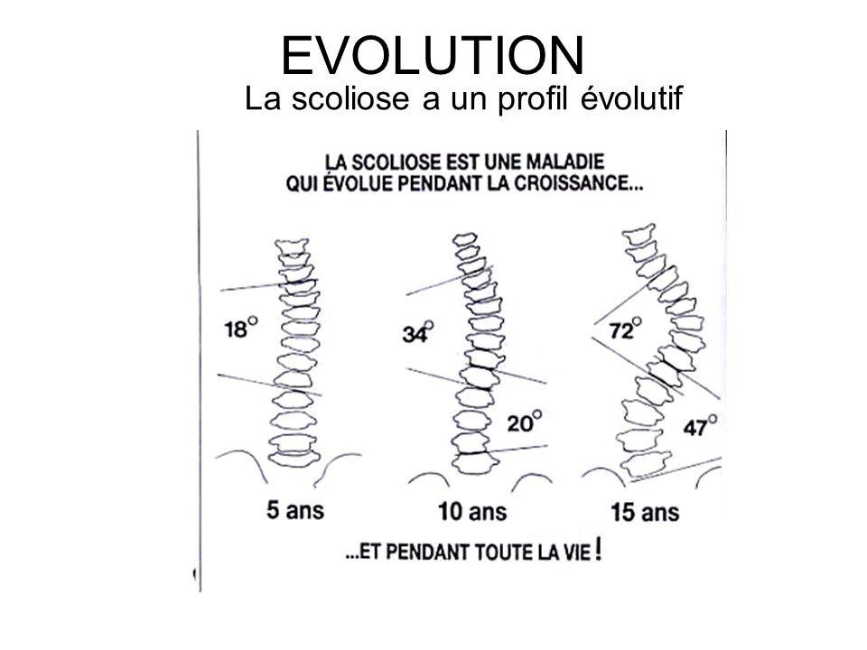 EVOLUTION La scoliose a un profil évolutif