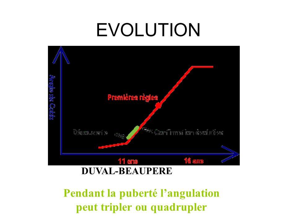 EVOLUTION DUVAL-BEAUPERE Pendant la puberté langulation peut tripler ou quadrupler
