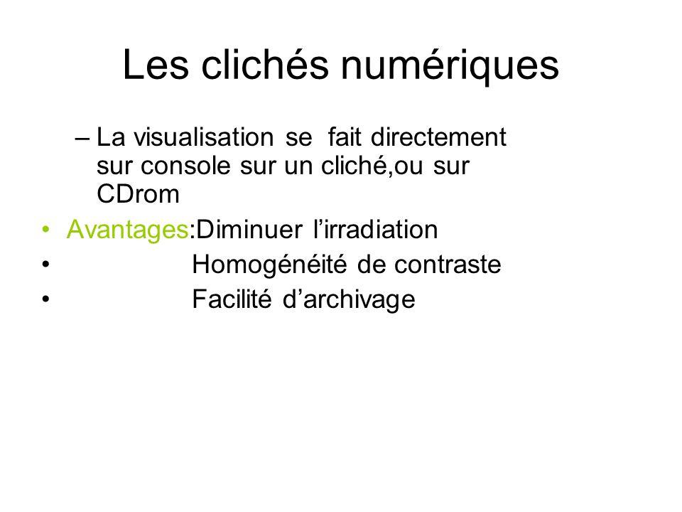 Les clichés numériques –La visualisation se fait directement sur console sur un cliché,ou sur CDrom Avantages:Diminuer lirradiation Homogénéité de con