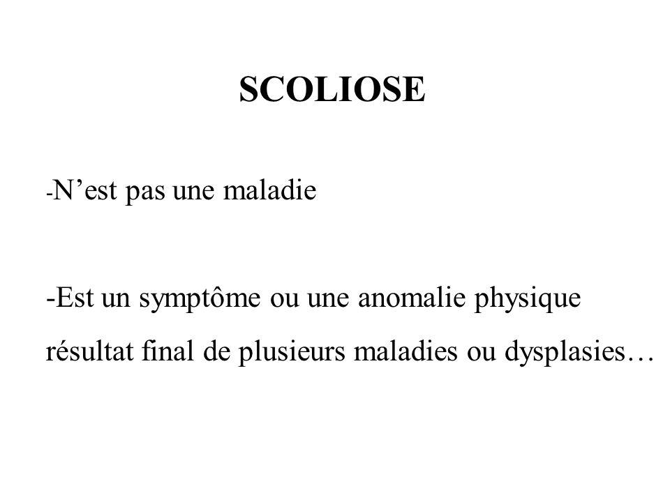 - Nest pas une maladie -Est un symptôme ou une anomalie physique résultat final de plusieurs maladies ou dysplasies… SCOLIOSE