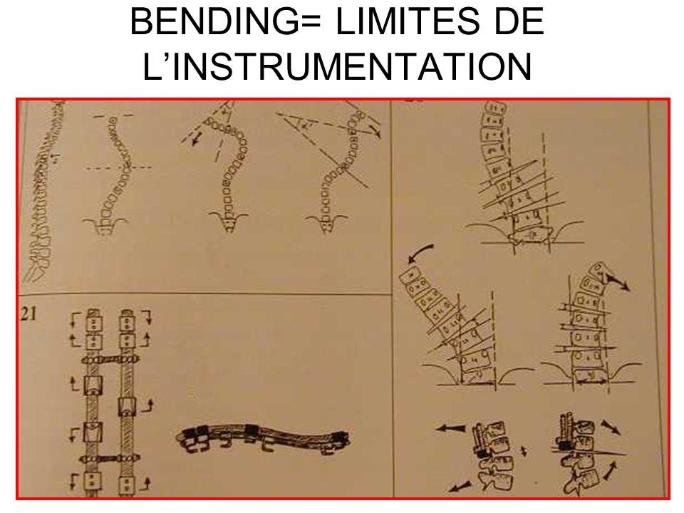BENDING= LIMITES DE LINSTRUMENTATION