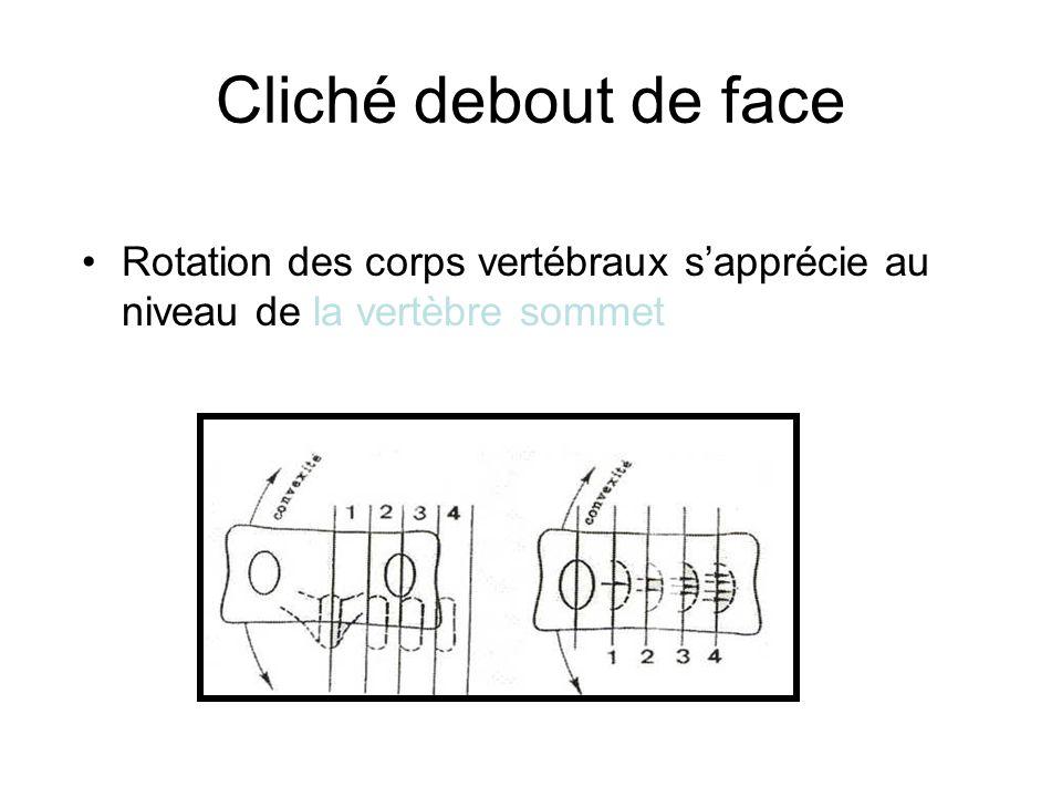 Cliché debout de face Rotation des corps vertébraux sapprécie au niveau de la vertèbre sommet