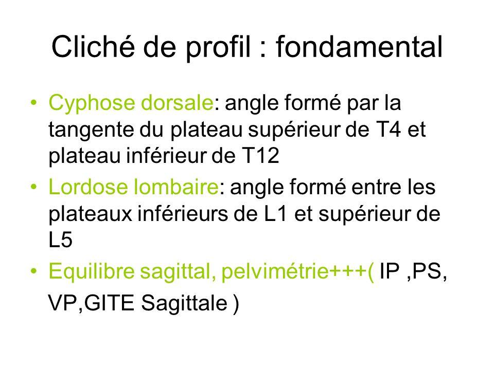 Cliché de profil : fondamental Cyphose dorsale: angle formé par la tangente du plateau supérieur de T4 et plateau inférieur de T12 Lordose lombaire: a