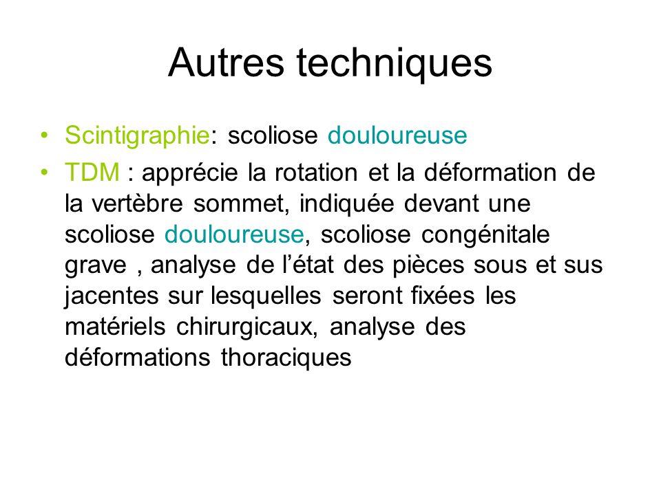 Autres techniques Scintigraphie: scoliose douloureuse TDM : apprécie la rotation et la déformation de la vertèbre sommet, indiquée devant une scoliose