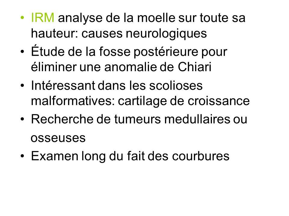 IRM analyse de la moelle sur toute sa hauteur: causes neurologiques Étude de la fosse postérieure pour éliminer une anomalie de Chiari Intéressant dan