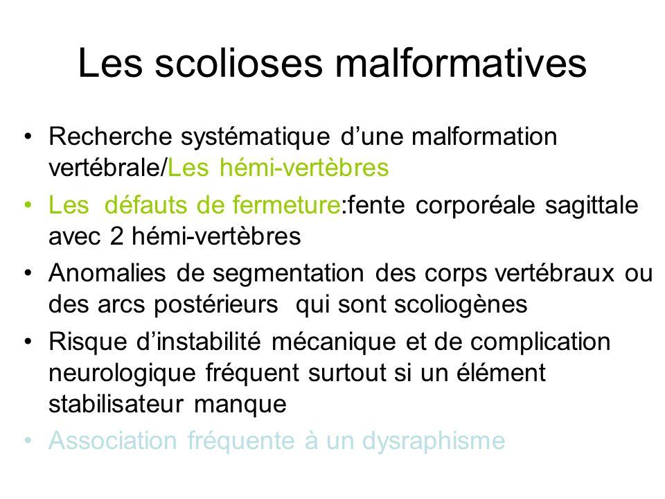 Les scolioses malformatives Recherche systématique dune malformation vertébrale/Les hémi-vertèbres Les défauts de fermeture:fente corporéale sagittale