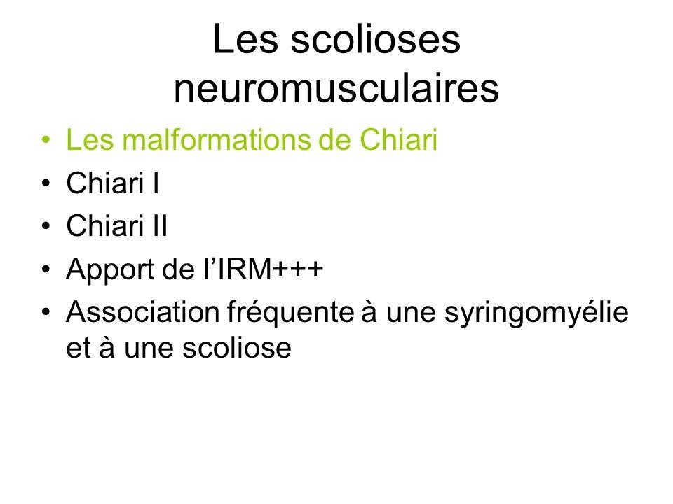 Les scolioses neuromusculaires Les malformations de Chiari Chiari I Chiari II Apport de lIRM+++ Association fréquente à une syringomyélie et à une sco