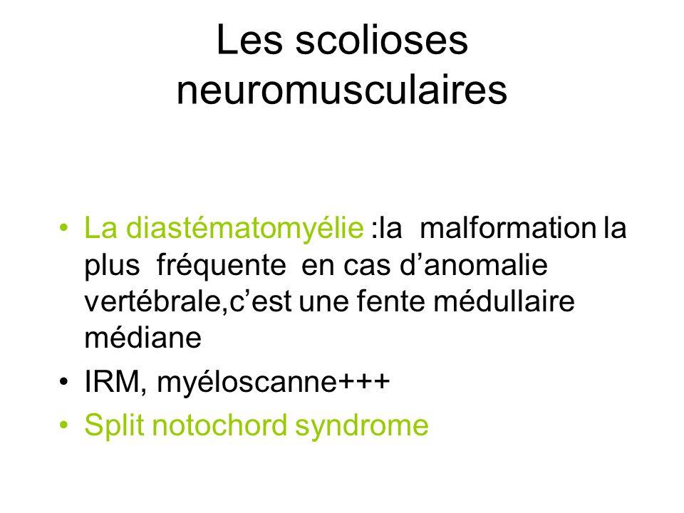 Les scolioses neuromusculaires La diastématomyélie :la malformation la plus fréquente en cas danomalie vertébrale,cest une fente médullaire médiane IR