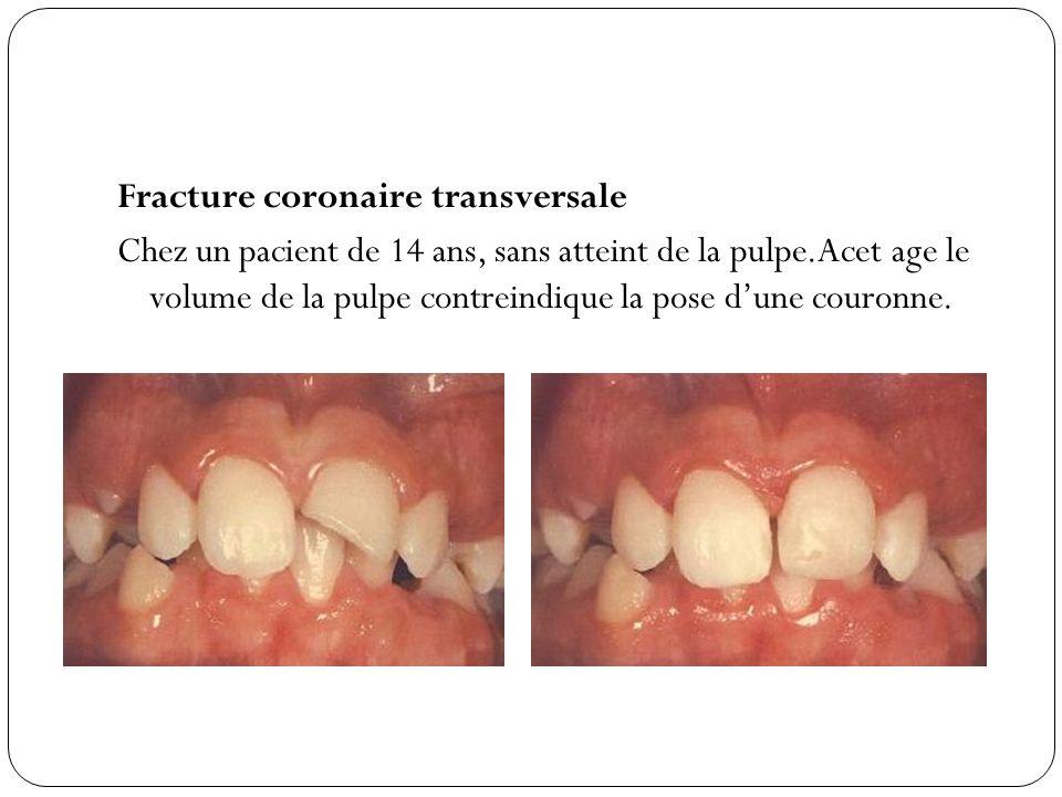 Fracture coronaire transversale Chez un pacient de 14 ans, sans atteint de la pulpe.Acet age le volume de la pulpe contreindique la pose dune couronne