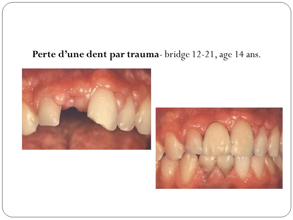 Perte dune dent par trauma- bridge 12-21, age 14 ans.