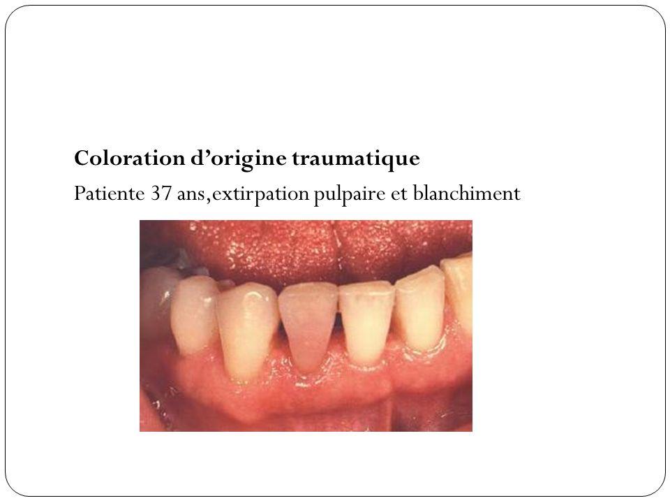 Coloration dorigine traumatique Patiente 37 ans,extirpation pulpaire et blanchiment