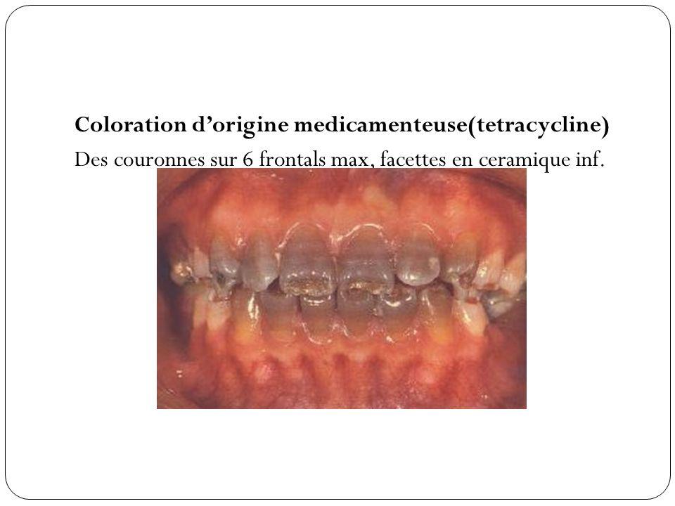 Coloration dorigine medicamenteuse(tetracycline) Des couronnes sur 6 frontals max, facettes en ceramique inf.