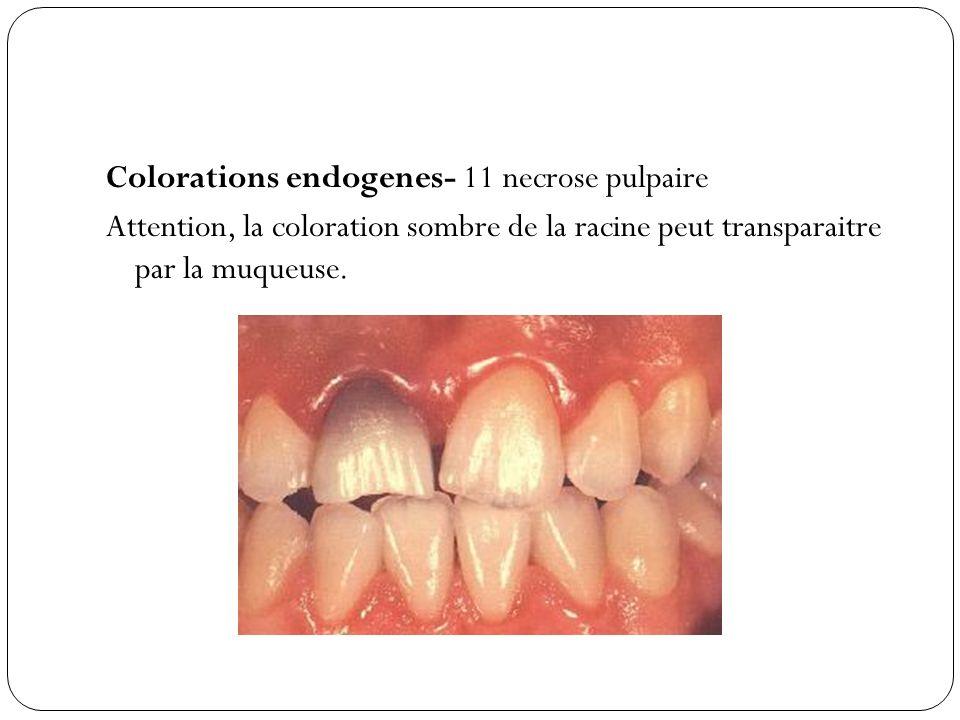 Colorations endogenes- 11 necrose pulpaire Attention, la coloration sombre de la racine peut transparaitre par la muqueuse.
