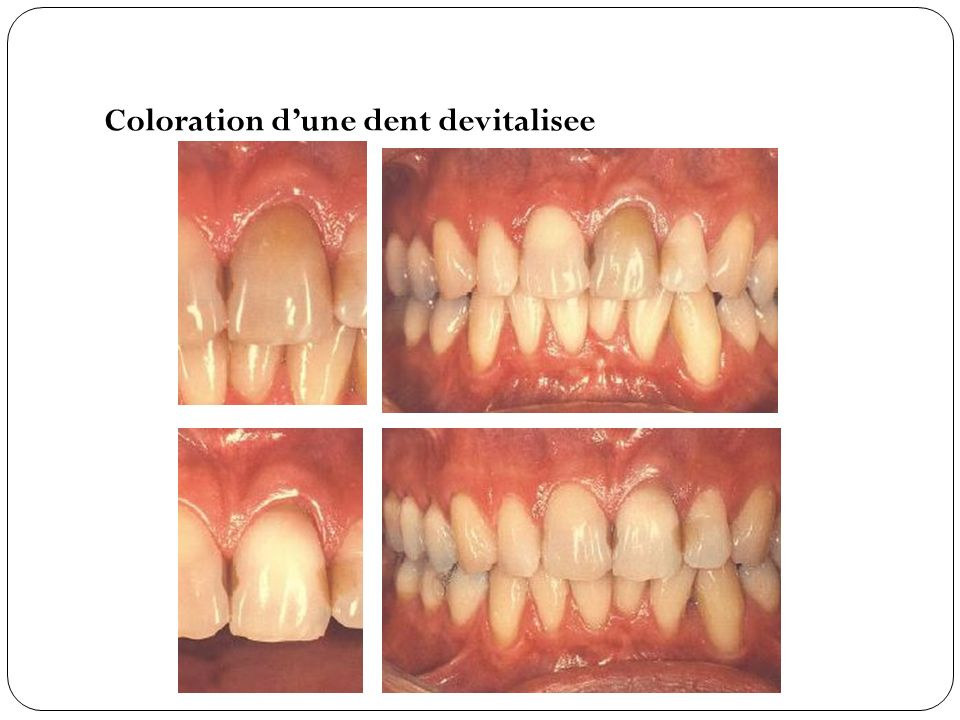 Coloration dune dent devitalisee