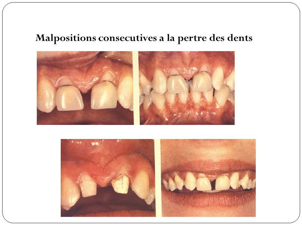 Malpositions consecutives a la pertre des dents