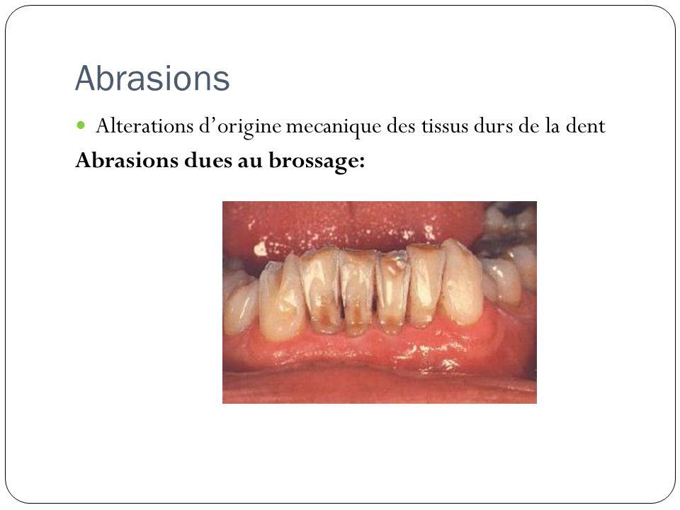 Abrasions Alterations dorigine mecanique des tissus durs de la dent Abrasions dues au brossage: