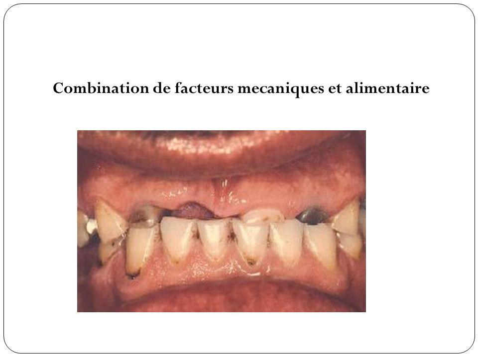 Combination de facteurs mecaniques et alimentaire