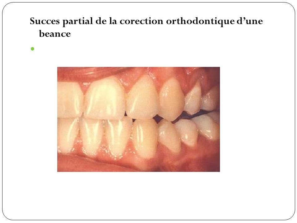 Succes partial de la corection orthodontique dune beance