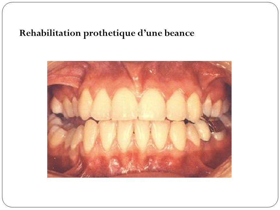 Rehabilitation prothetique dune beance
