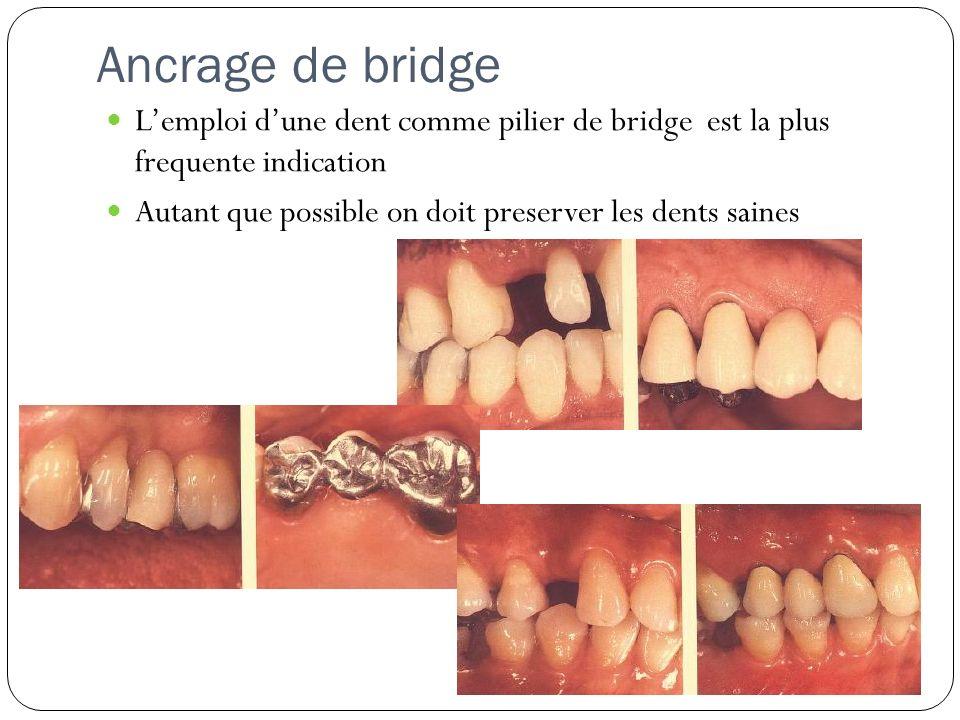 Ancrage de bridge Lemploi dune dent comme pilier de bridge est la plus frequente indication Autant que possible on doit preserver les dents saines