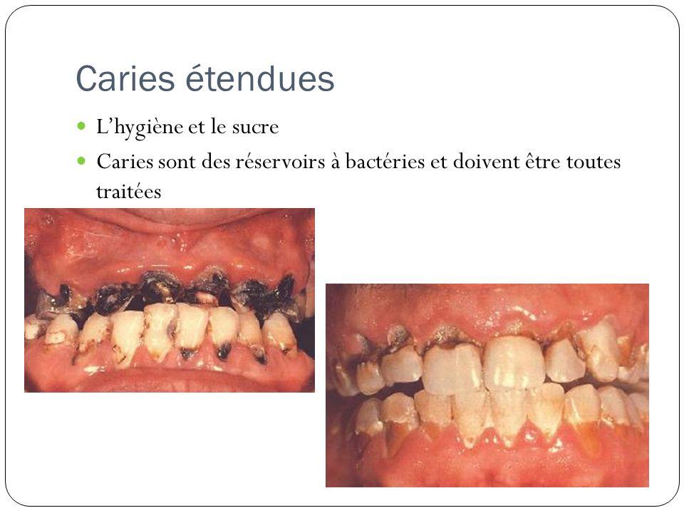 Caries étendues Lhygiène et le sucre Caries sont des réservoirs à bactéries et doivent être toutes traitées
