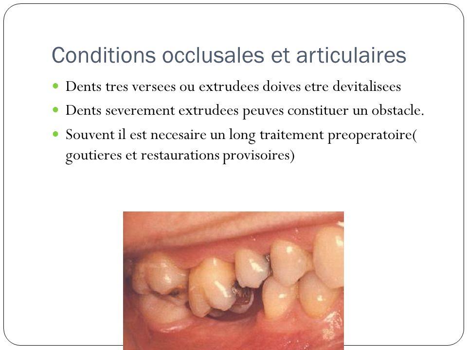 Conditions occlusales et articulaires Dents tres versees ou extrudees doives etre devitalisees Dents severement extrudees peuves constituer un obstacl