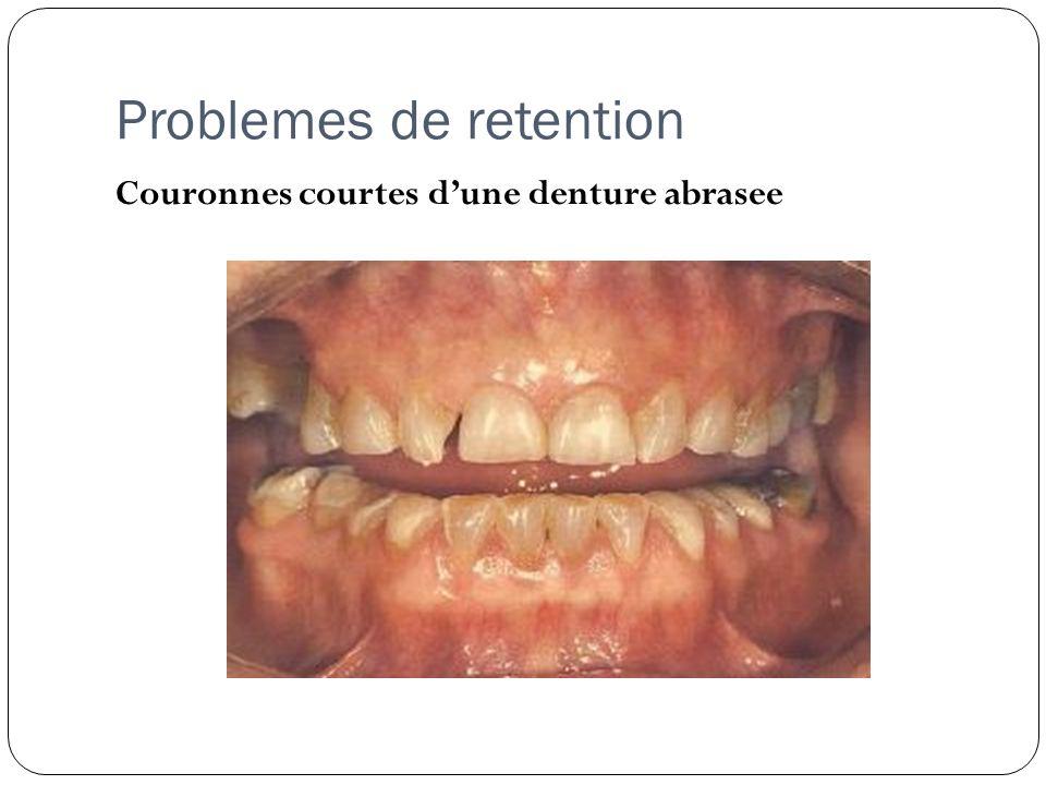 Problemes de retention Couronnes courtes dune denture abrasee