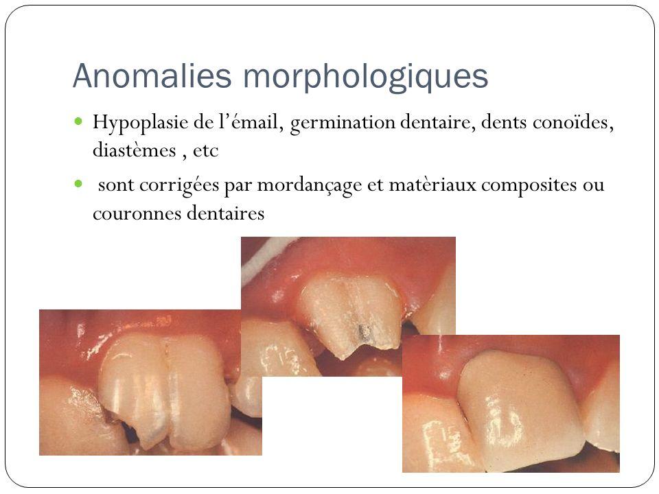 Anomalies morphologiques Hypoplasie de lémail, germination dentaire, dents conoïdes, diastèmes, etc sont corrigées par mordançage et matèriaux composi