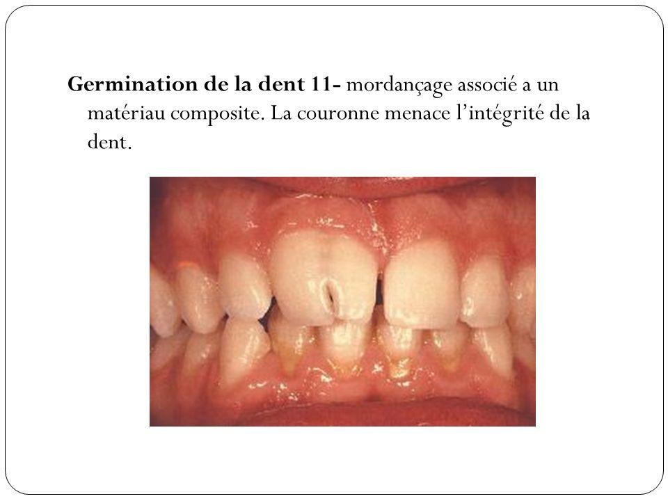 Germination de la dent 11- mordançage associé a un matériau composite. La couronne menace lintégrité de la dent.