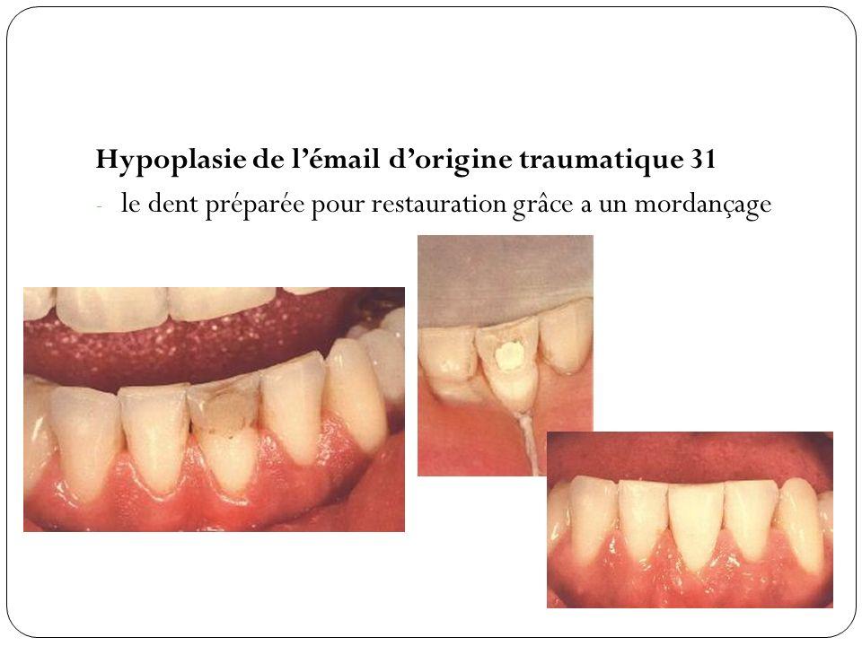 Hypoplasie de lémail dorigine traumatique 31 - le dent préparée pour restauration grâce a un mordançage
