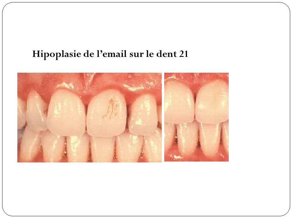 Hipoplasie de lemail sur le dent 21