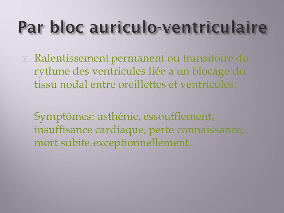 Ralentissement permanent ou transitoire du rythme des ventricules liée a un blocage du tissu nodal entre oreillettes et ventricules.