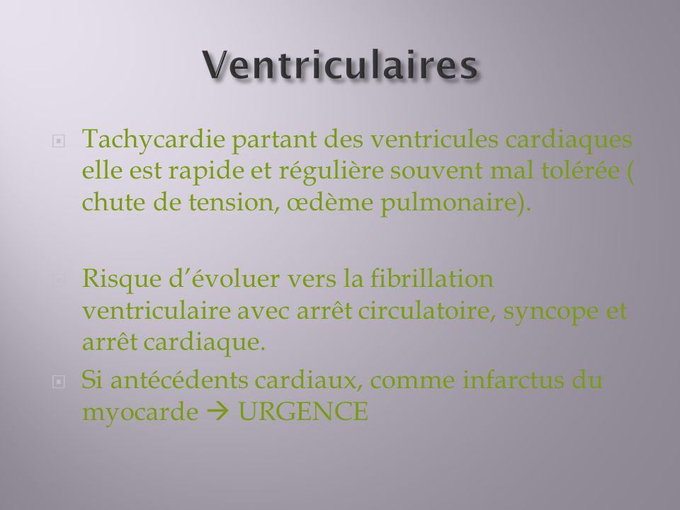 Tachycardie partant des ventricules cardiaques elle est rapide et régulière souvent mal tolérée ( chute de tension, œdème pulmonaire).
