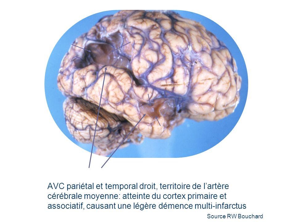 AVC pariétal et temporal droit, territoire de lartère cérébrale moyenne: atteinte du cortex primaire et associatif, causant une légère démence multi-infarctus Source RW Bouchard