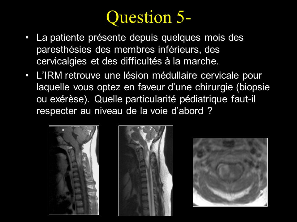 Question 5- La patiente présente depuis quelques mois des paresthésies des membres inférieurs, des cervicalgies et des difficultés à la marche. LIRM r