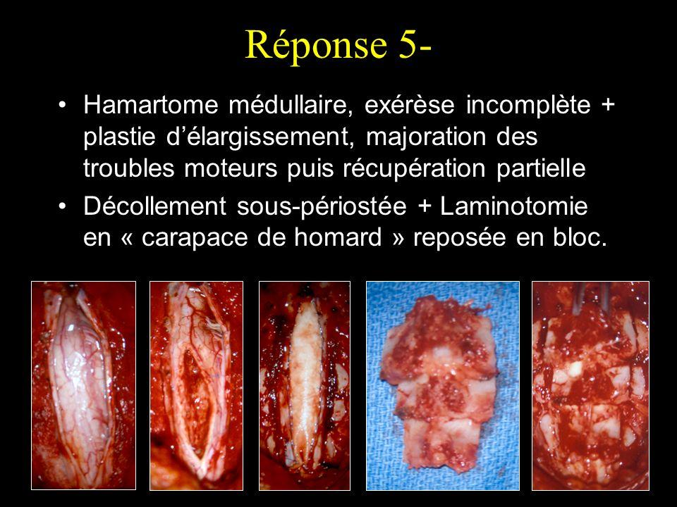 Réponse 5- Hamartome médullaire, exérèse incomplète + plastie délargissement, majoration des troubles moteurs puis récupération partielle Décollement