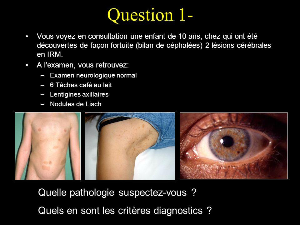 Réponse 1- Neurofibromatose de type 1 ou maladie de Recklinghausen Critères: 2/7 1.> 6 tâches café au lait (100%) 2.Lentigines axillaires / inguinales 3.> 2 neurofibromes ou 1 neurofibrome plexiforme (100%) 4.Gliome des nerfs optiques 5.> 2 nodules de Lisch (hamartome irien) (60 / 80 %) 6.Lésions osseuses caractéristiques (dysplasie du sphénoïde, amincissement cortical des os longs, pseudarthrose) 7.1 parent du premier degré atteint