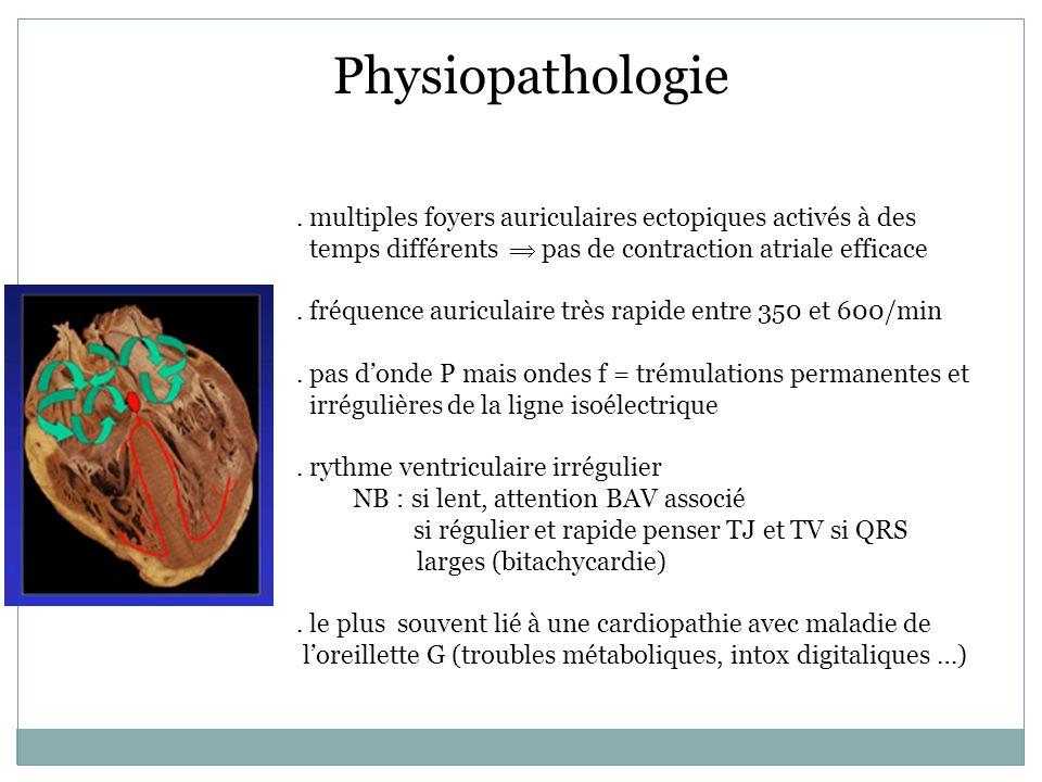 ESC 2009 - Daprès Ehrlich JR et al., présentation 294 actualisée Le remodelage atrial : une modification progressive de loreillette gauche Électrique Contractile Structural Physiopathologie