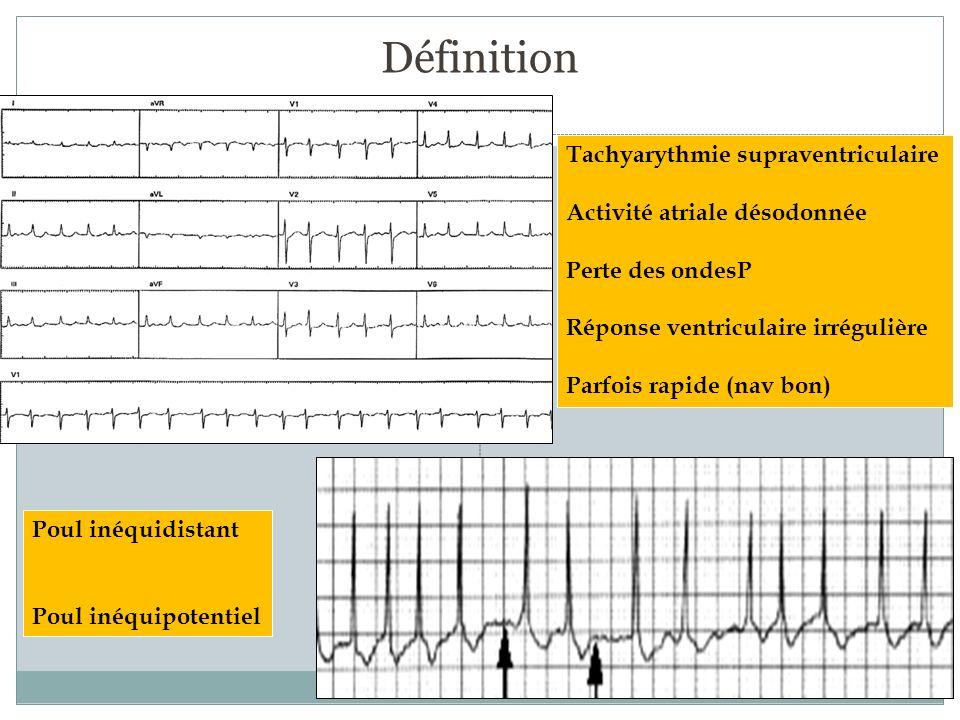 Définition Tachyarythmie supraventriculaire Activité atriale désodonnée Perte des ondesP Réponse ventriculaire irrégulière Parfois rapide (nav bon) Po